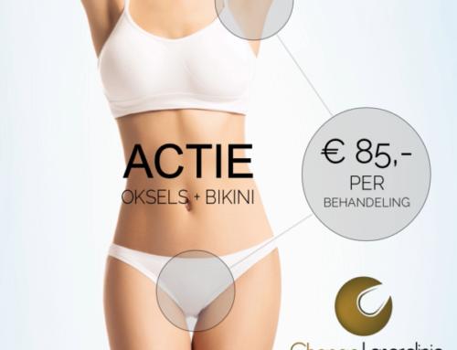 ACTIE IS VERLENGD – OKSELS + BIKINI voor maar € 85,- per behandeling